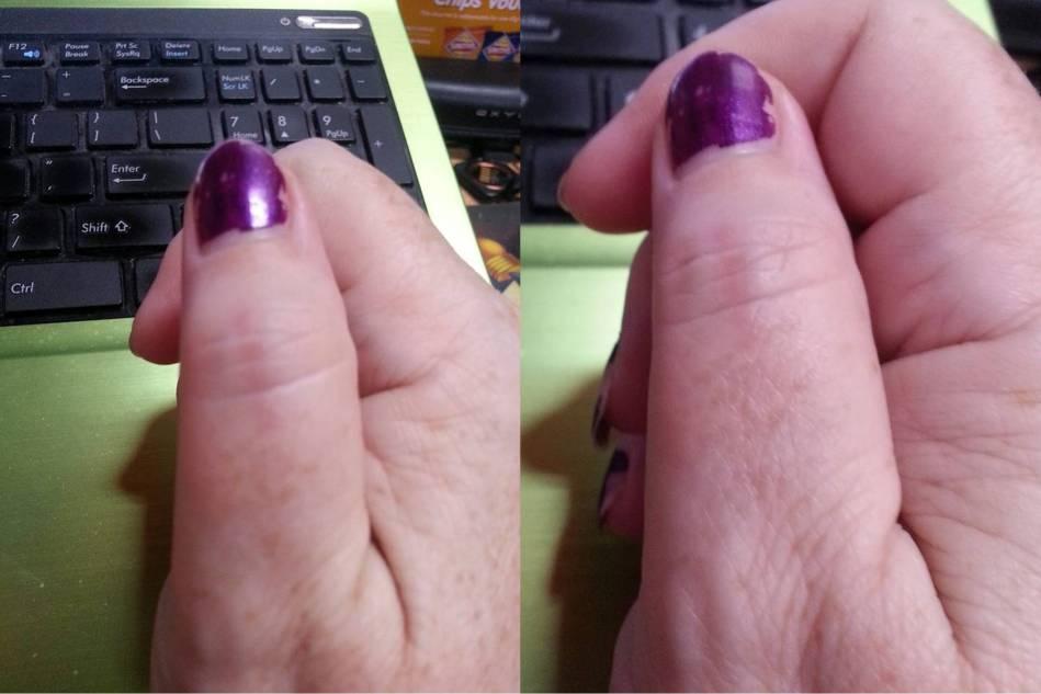 burnt-thumb-27-12-16