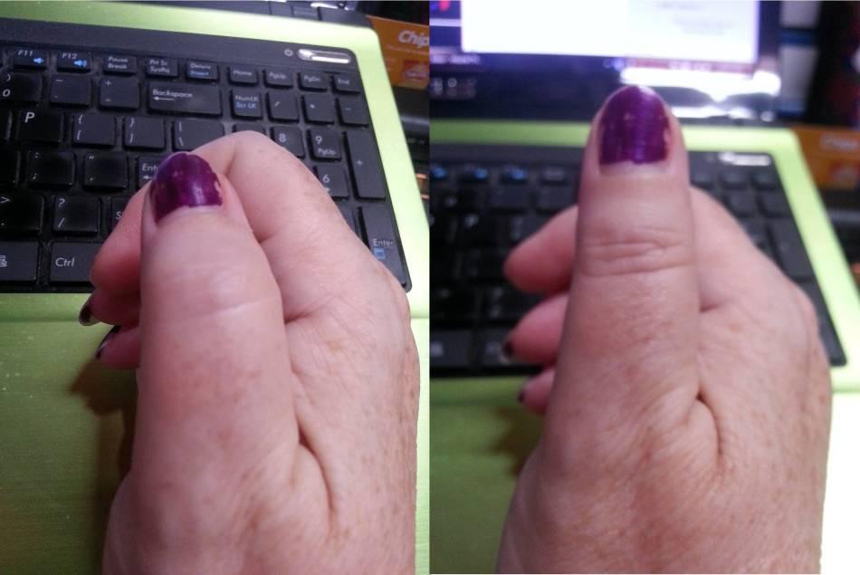 burnt-thumb-29-12-16